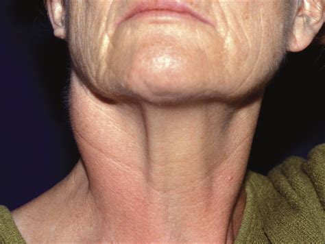 thyroid throat picture 1