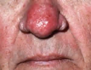 acne rosacea phymatous picture 14