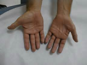 Muscle deterioration picture 13