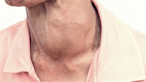 what are treatments to thyroid enlargement picture 1