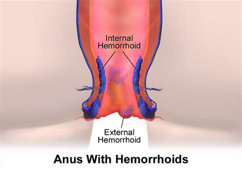 info on hemorrhoids and bleeding picture 3