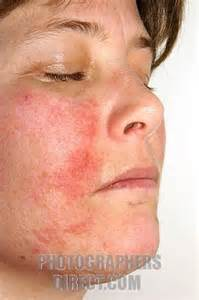 treatment for oral herpes picture 5