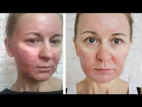 laser resurfacing pictures acne scars picture 6