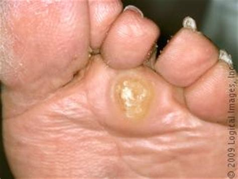 warts on ball of footfoot problems picture 12