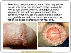 drug remove warts caused by hpv picture 2