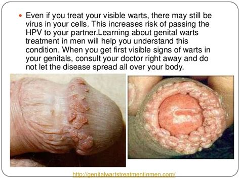 can you get vaginal hpv from wart on finger picture 11