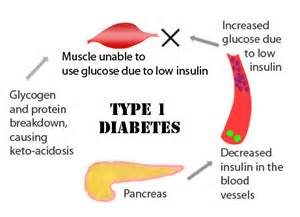 incidence of thyroid diseases in type 2 diabetes picture 10