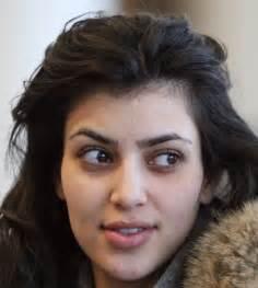 lip acne when pregnant picture 10