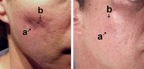 dr khurram dermatologist scar removal picture 14