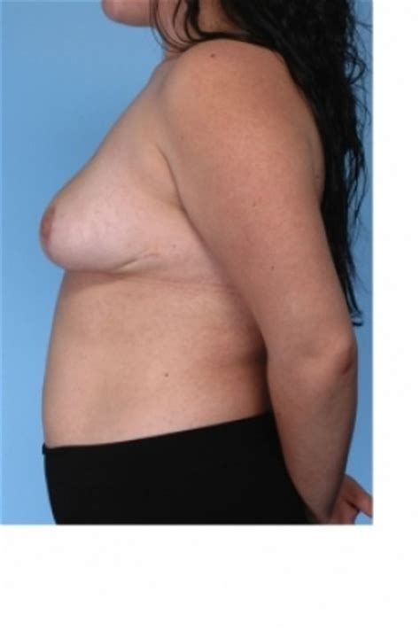 breast enhancement fat transfer before and after picture 2