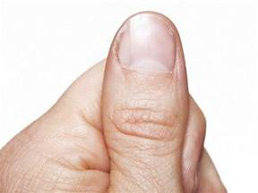 fungus nail picture 5