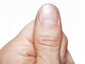 noxzema nail fungus picture 1