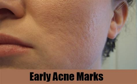 acne marks picture 14