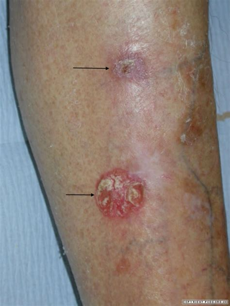 skin condition on legs picture 2