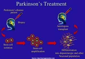 natural parkinsons pills picture 3