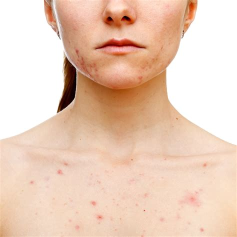 acne scholarships picture 10