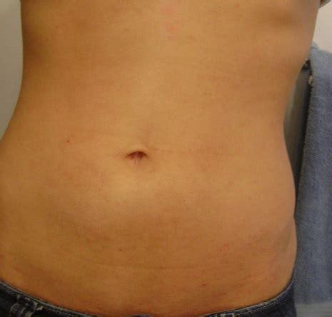 abdominal skin picture 11