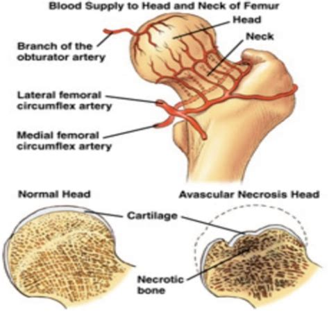Blood flow of bony picture 9