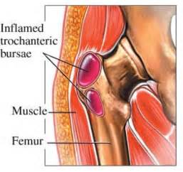 causes of body joint pain picture 7