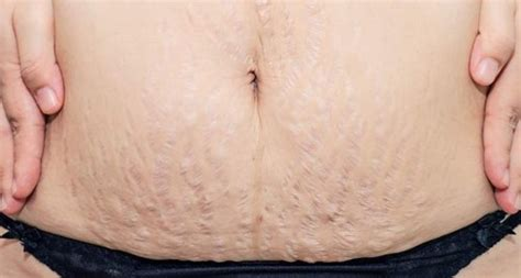 how to get rid of after pregnancy stretch marks picture 3