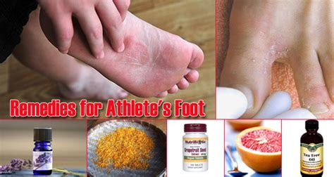 athlete foot herbal remedy picture 11