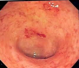 ulcerative colitis in the sigmoid colon picture 2