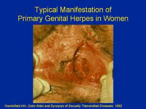 pictures of women with herpes in the vaginal picture 5