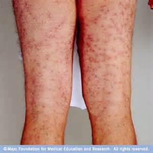 water causing skin rash picture 2