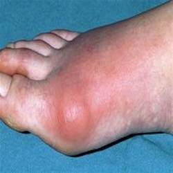 herbal medicine for gout picture 2