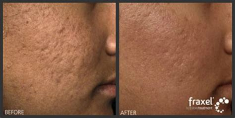 fraxel laser for acne scarring encino picture 1