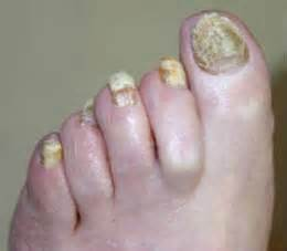 foot nail fungus picture 9