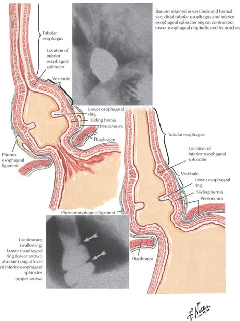 esophageal swelling post thyroidectomy picture 1