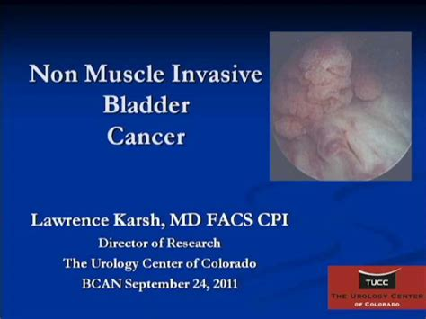 treatment for cancer of the bladder picture 6