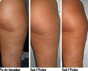 cellulite reduction treatment picture 6