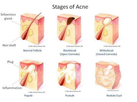 acne nodules and cysts picture 5