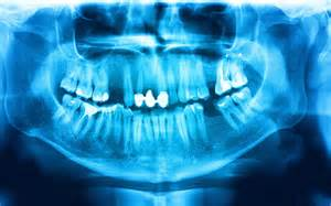teeth after radiation picture 5