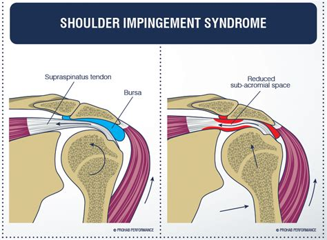 joint impingement syndrome picture 3