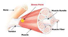 anxiety muscle stiffness picture 13