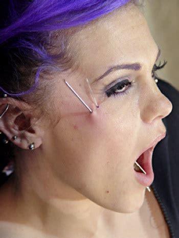 Lip implant picture 2