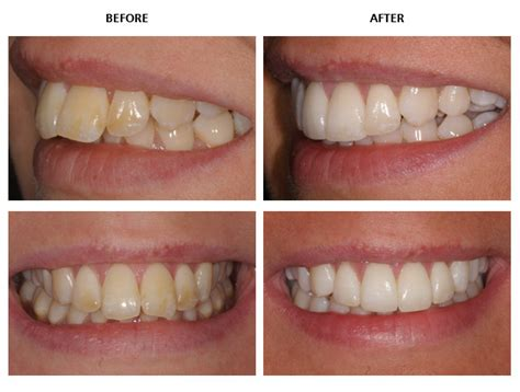 align of teeth after braces picture 9