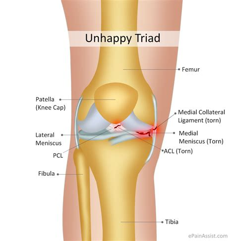 hip pain joint picture 15