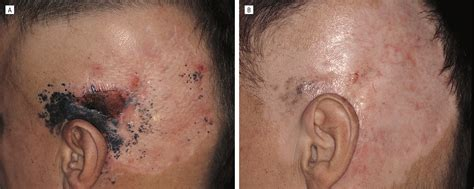 aldara cream side effects pictures picture 5