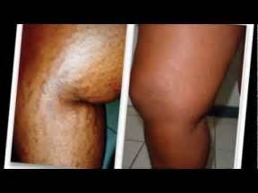 what works on african american skin for stretch picture 5