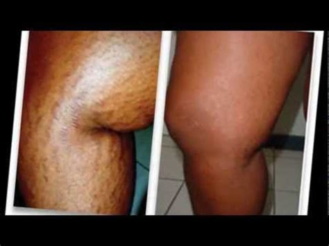 strivectin for stretch marks picture 5