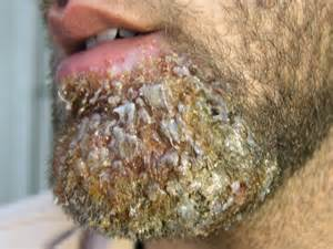 what are bacterial infections picture 19