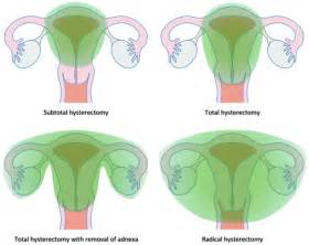 herbal prevention to total hysterectomy effects picture 12