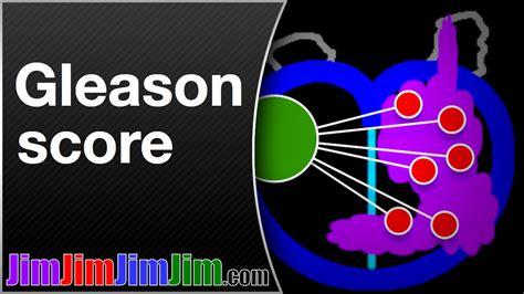Gleason score prostate cancer picture 9