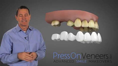 cost of teeth veneers picture 10