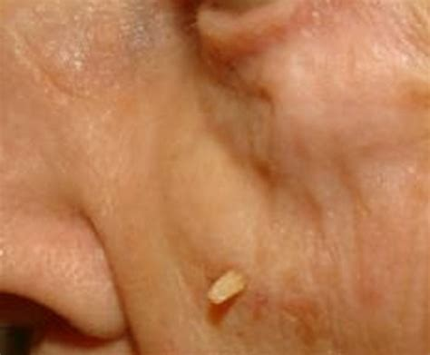 face warts picture 1