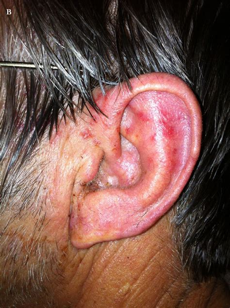 herpes and the ear picture 6